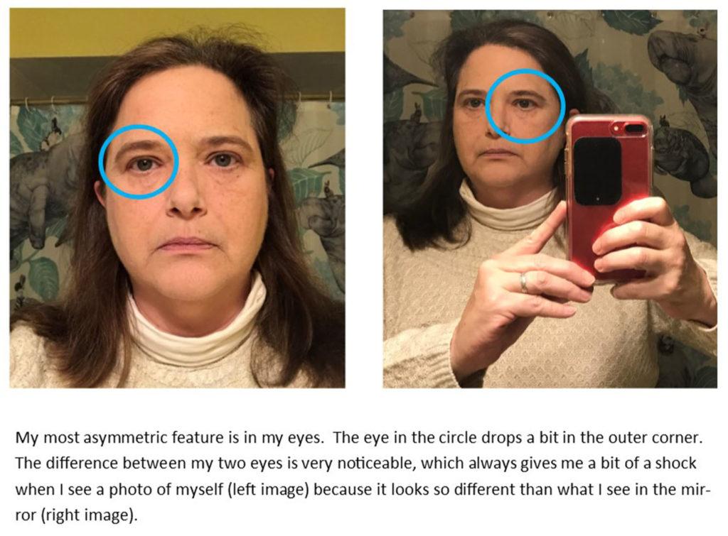 Graphic of Carolyn's asymmetrical face.